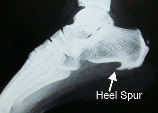 Heel Spur Pain Physical Therapy Bozeman