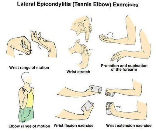 Tennis Elbow Home Physical Therapy Exercises