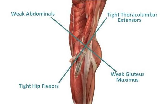 lower cross syndrome core physical therapy rehab bozeman