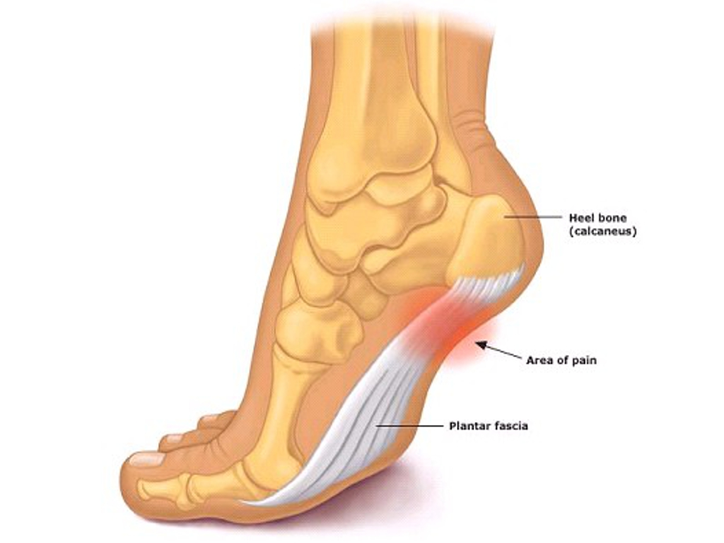 plantar fasciitis heel pain treatment Bozeman